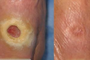 Pé diabético + Ondas de Choque – novo tratamento para feridas de difícil cicatrização.