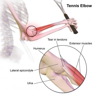 Terapia por Ondas de Choque nas lesões do cotovelo