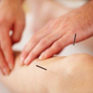Acupuntura: Como pode ajudar a melhorar sua dor?